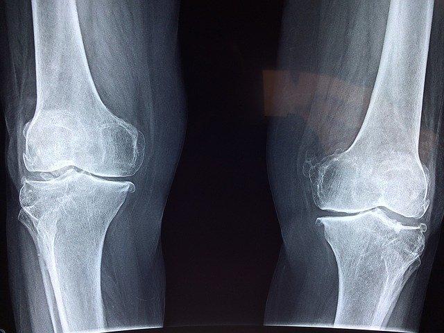 knee xray showing injury